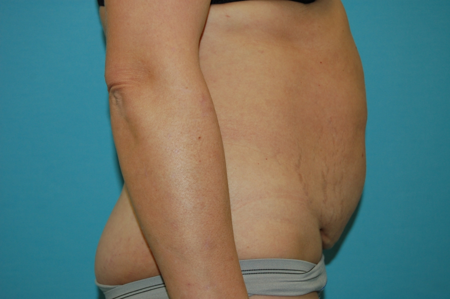 Abdominoplasty 1 - before