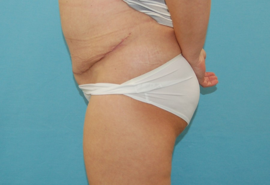Abdominoplasty 3 - after