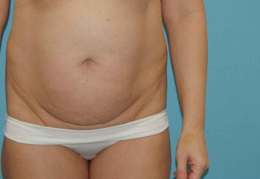 Abdominoplasty 3 - before