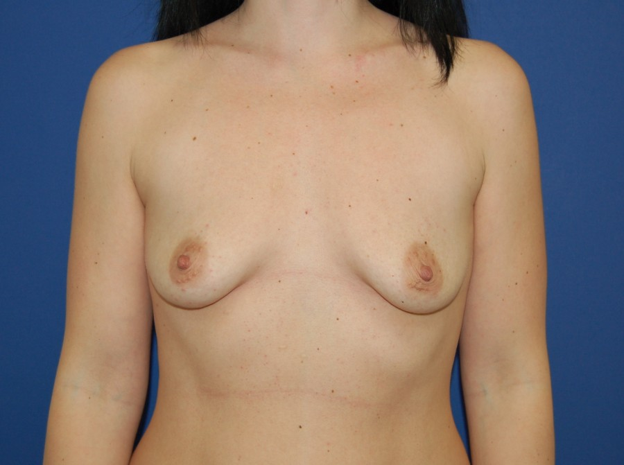 Breast augmentation 7 (before)