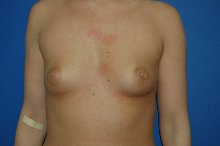 Breast augmentation 1 (before)
