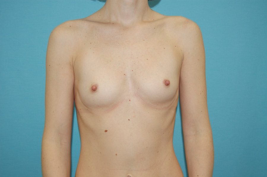 Breast augmentation 2 (before)