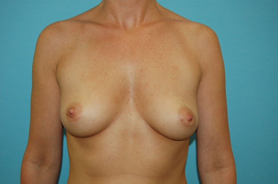 Breast augmentation 3 (after)
