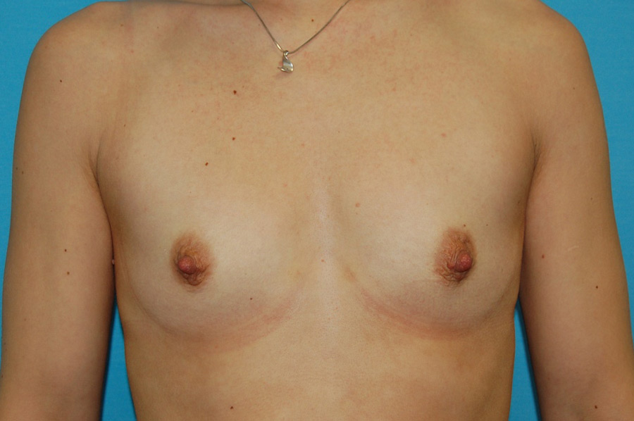 Breast augmentation 4 (before)