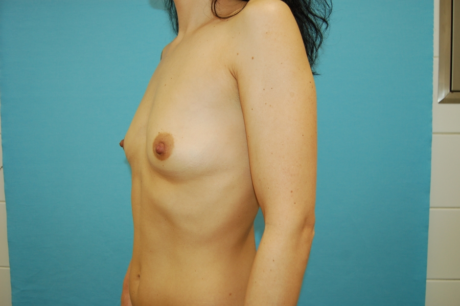 Breast augmentation 5 (before)