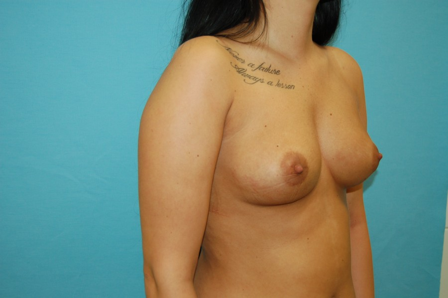 Breast augmentation 6 (before)