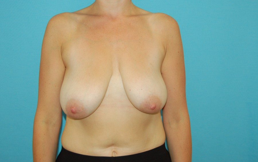 Breast modelling with implants 1 (before)