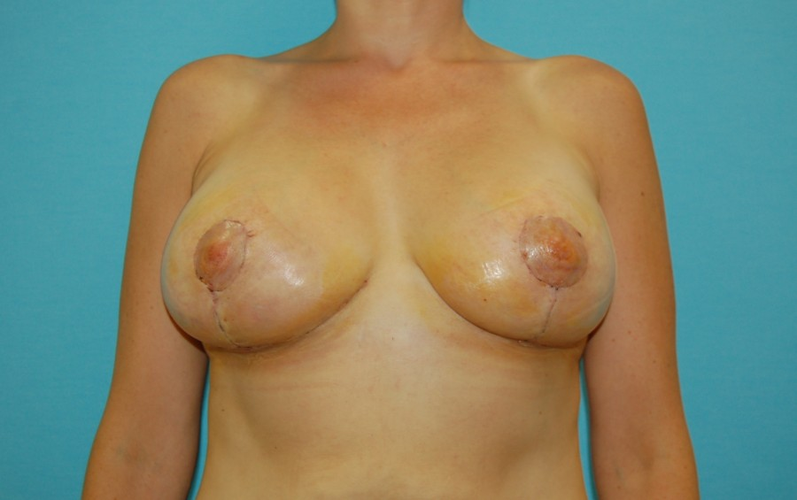 Breast modelling with implants 1 (after)