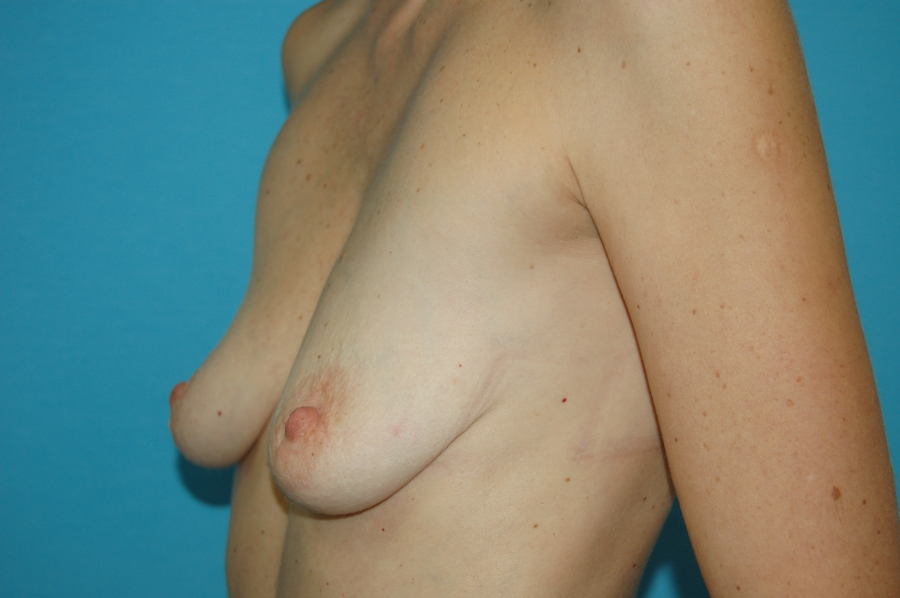 Breast modelling with implants 2 (before)