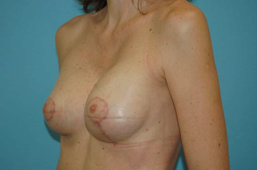 Breast modelling with implants 2 (after)