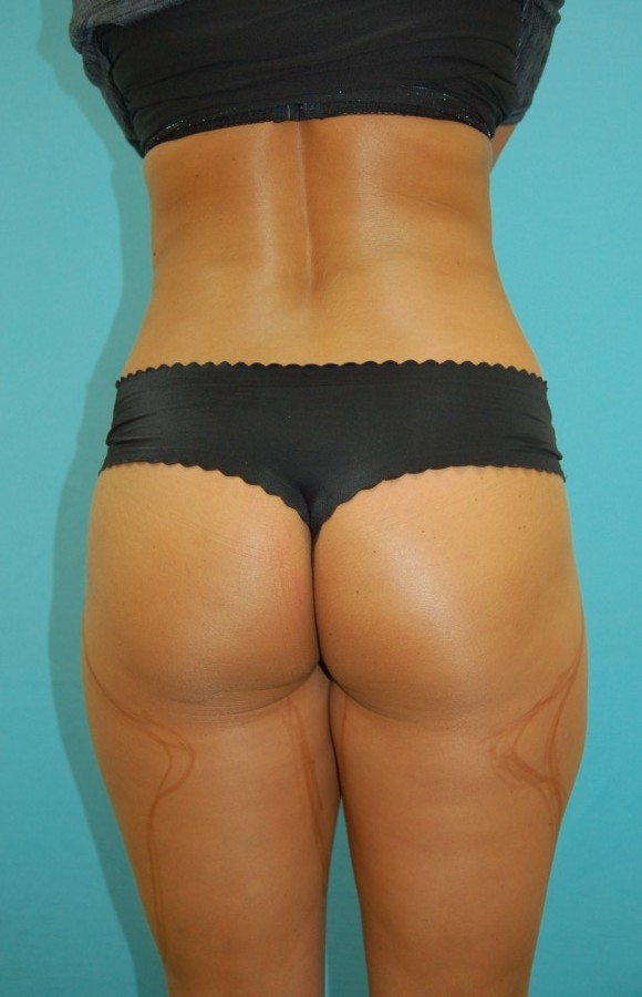 Liposuction 1 (before)