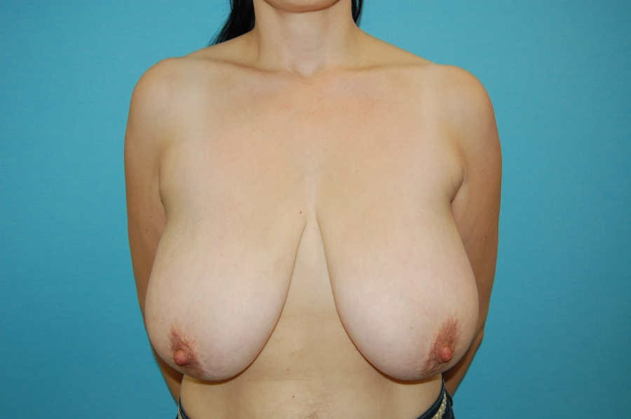 Breast modelling 1 (before)