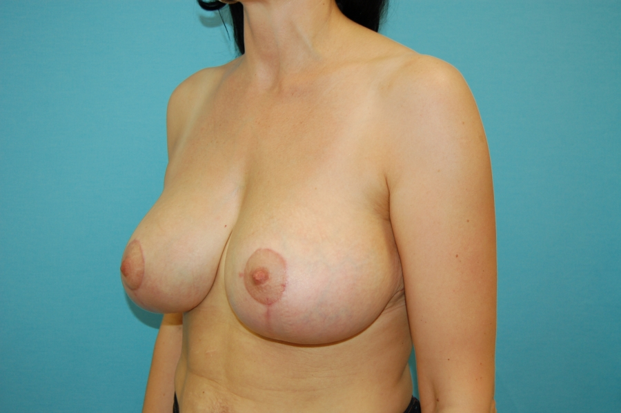 Breast modelling 1 (after)