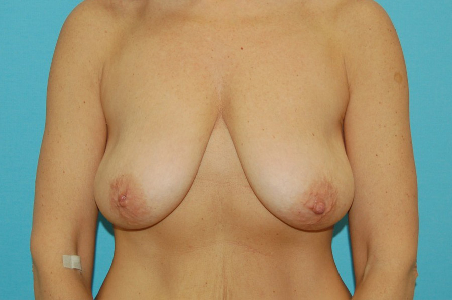 Breast modelling 2 (before)