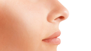 Rhinoplasty – Nose Surgery
